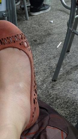 pé inchado